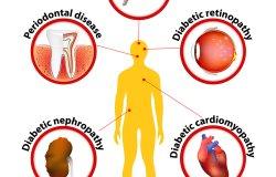 Diabete mellito, trial: Upo e ospedale di Novara cercano volontari